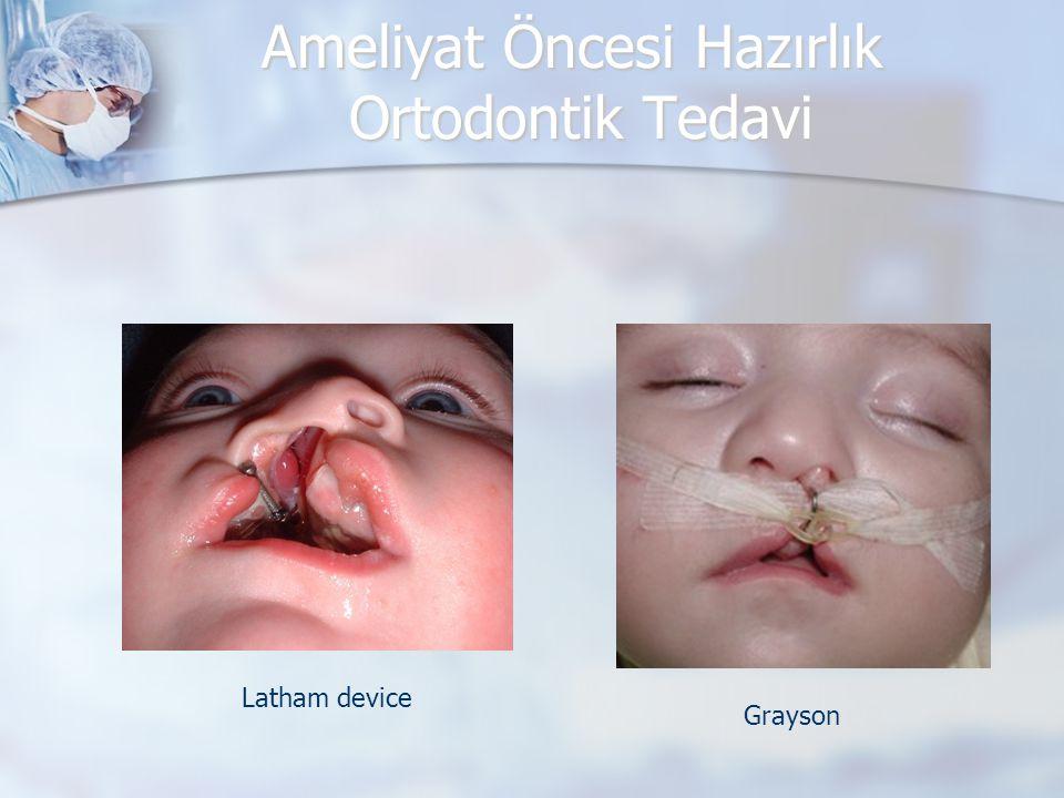 Ameliyat Öncesi Hazırlık Ortodontik Tedavi Latham device Grayson