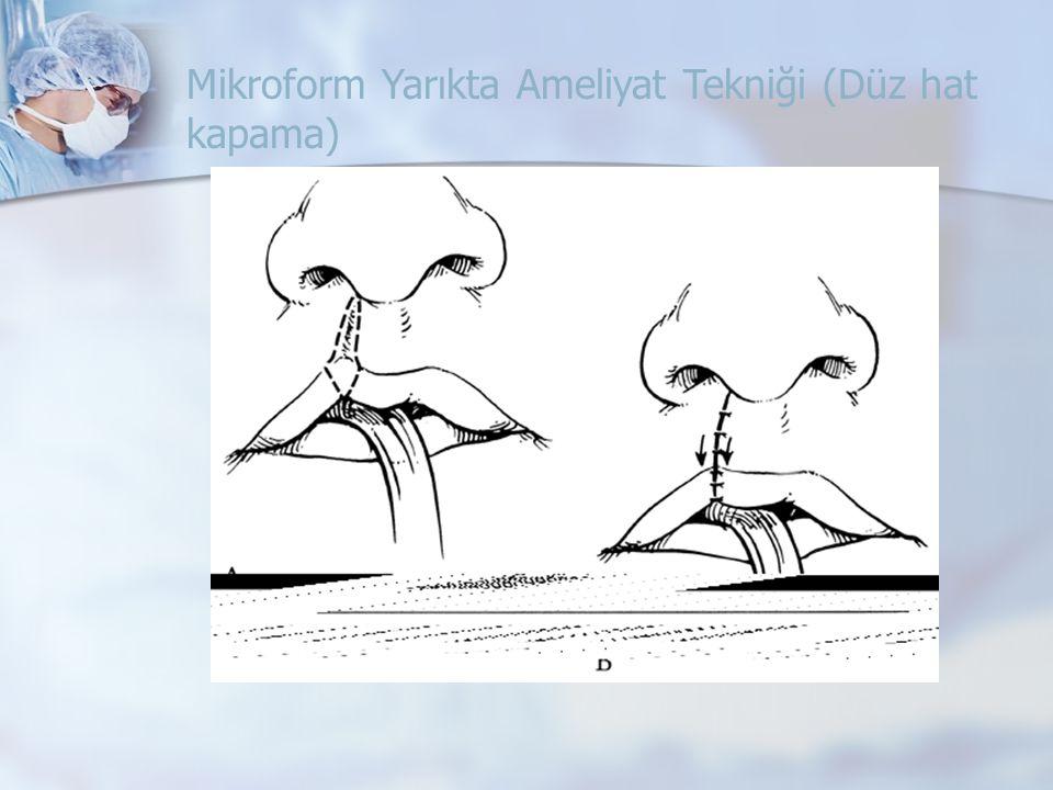 Mikroform Yarıkta Ameliyat Tekniği (Düz hat kapama)