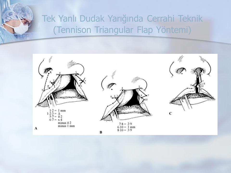 Tek Yanlı Dudak Yarığında Cerrahi Teknik (Tennison Triangular Flap Yöntemi)