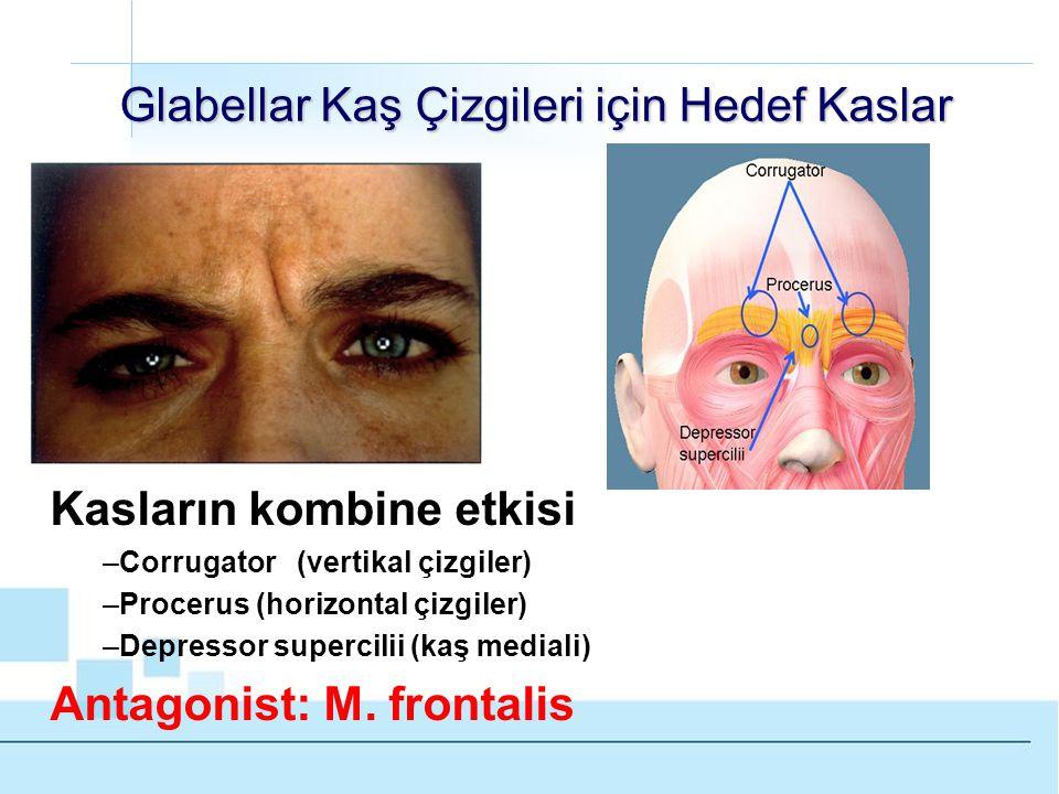 Glabellar Kaş Çizgileri için Hedef Kaslar Kasların kombine etkisi –Corrugator (vertikal çizgiler) –Procerus (horizontal çizgiler) –Depressor supercilii (kaş mediali) Antagonist: M.