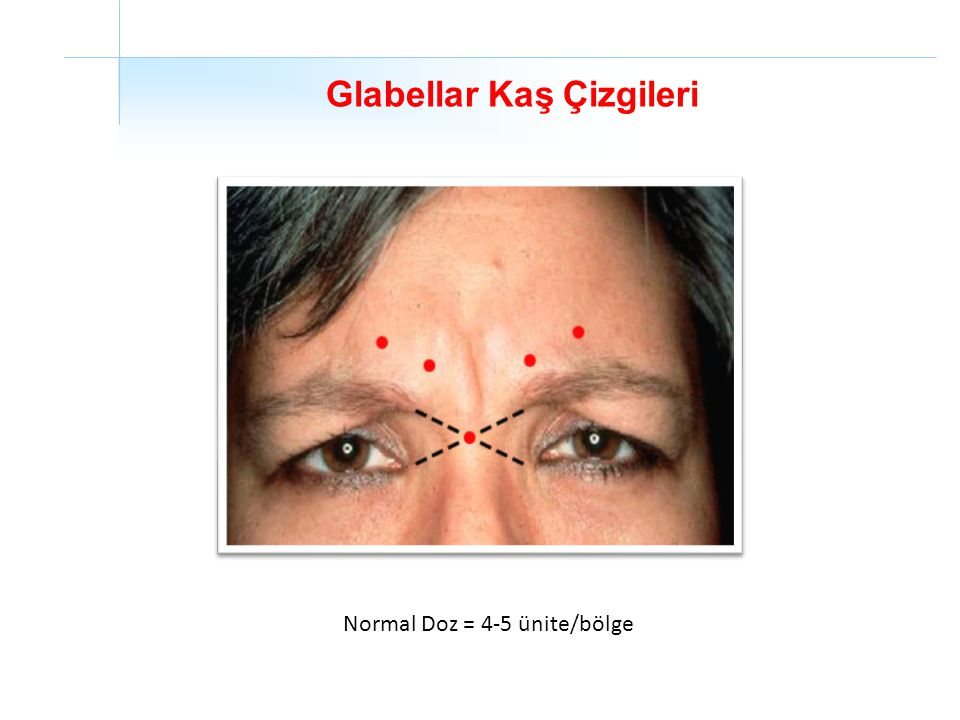 Glabellar Kaş Çizgileri Normal Doz = 4-5 ünite/bölge