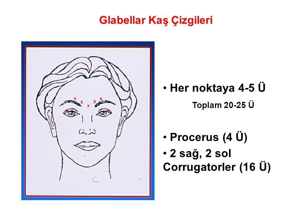 Glabellar Kaş Çizgileri • Her noktaya 4-5 Ü Toplam 20-25 Ü • Procerus (4 Ü) • 2 sağ, 2 sol Corrugatorler (16 Ü)