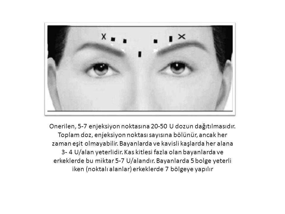 Onerilen, 5-7 enjeksiyon noktasına 20-50 U dozun dağıtılmasıdır.