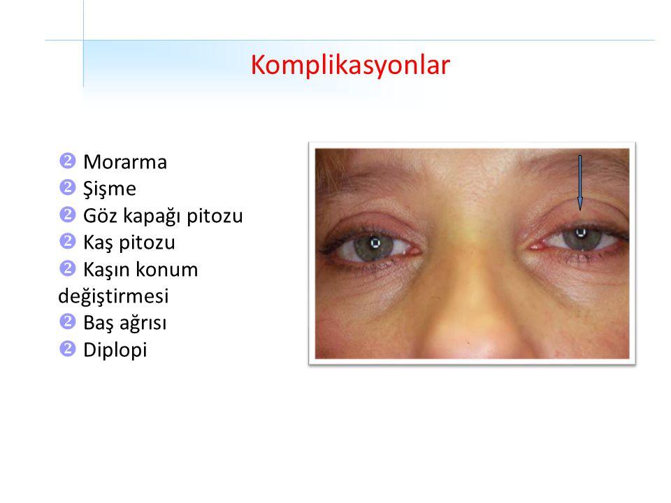 Komplikasyonlar  Morarma  Şişme  Göz kapağı pitozu  Kaş pitozu  Kaşın konum değiştirmesi  Baş ağrısı  Diplopi