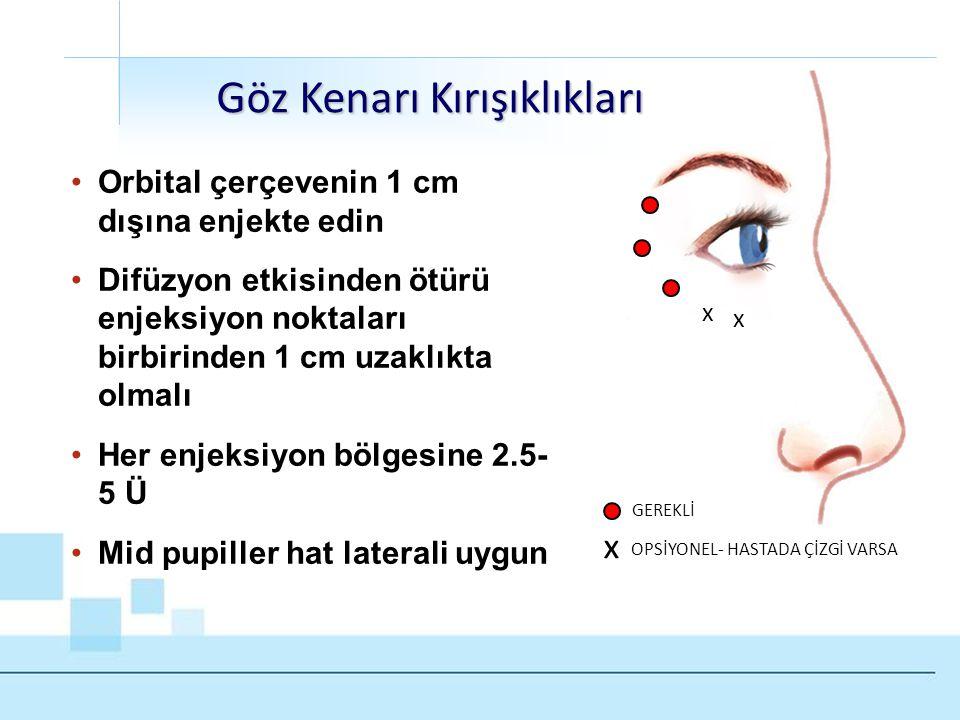 x x •Orbital çerçevenin 1 cm dışına enjekte edin •Difüzyon etkisinden ötürü enjeksiyon noktaları birbirinden 1 cm uzaklıkta olmalı •Her enjeksiyon böl