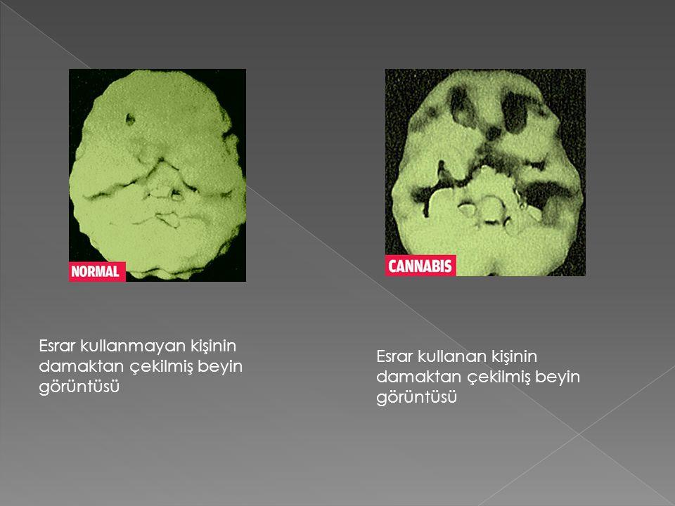 Esrar kullanmayan kişinin damaktan çekilmiş beyin görüntüsü Esrar kullanan kişinin damaktan çekilmiş beyin görüntüsü