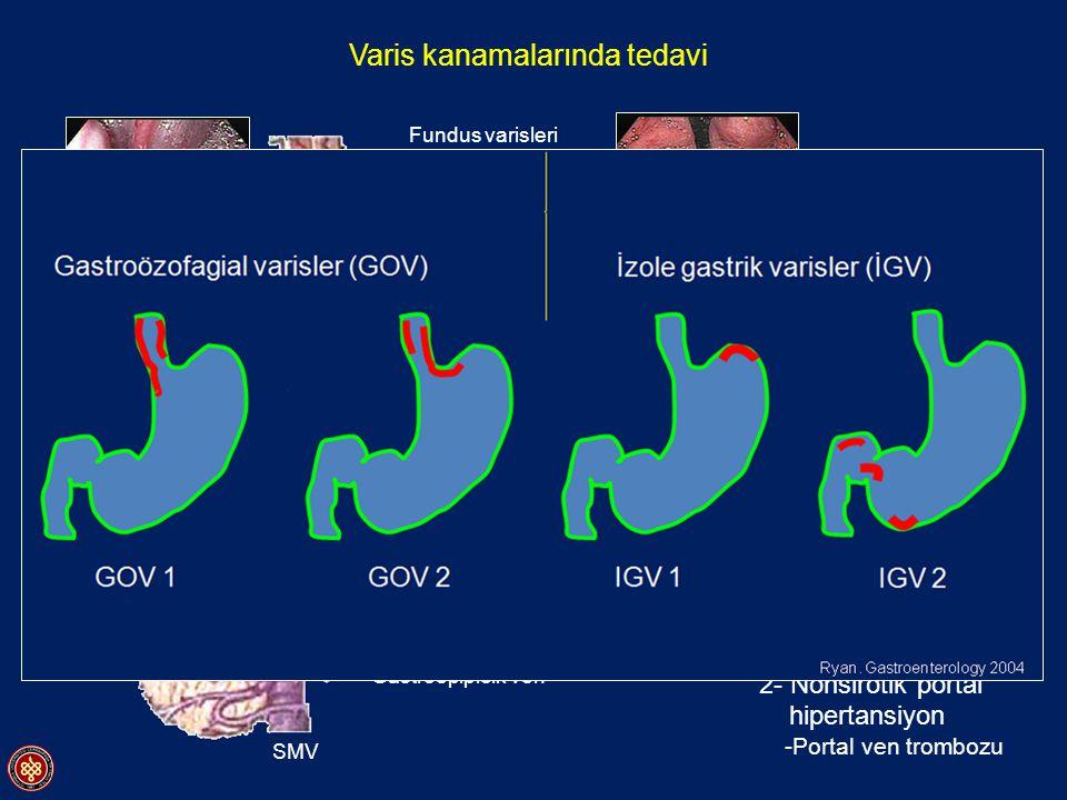 Varis kanamalarında tedavi Kısa gastrik venler Fundus varisleri Vena Porta SMV Splenik ven Pankreas Dalak Gastroepiploik ven Coronar ven Özofagus vari
