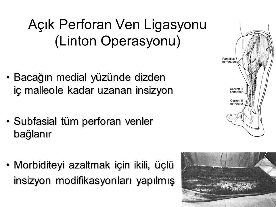Açık Perforan Ven Ligasyonu (Linton Operasyonu) •Bacağın yüzünde dizden iç malleole kadar uzanan insizyon •Bacağın medial yüzünde dizden iç malleole k