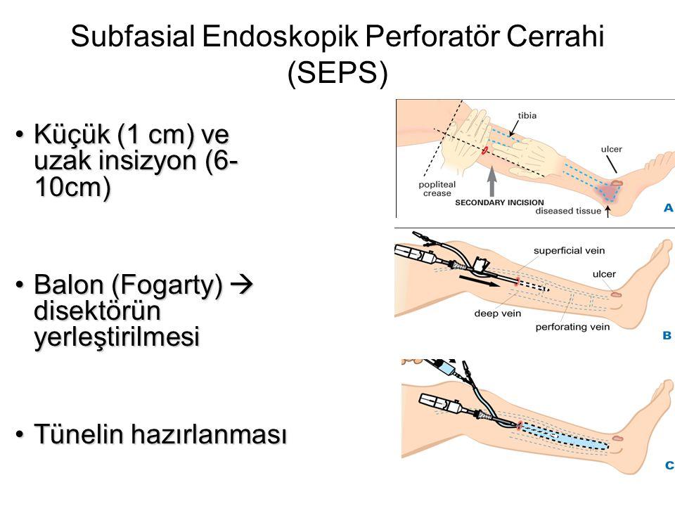 Subfasial Endoskopik Perforatör Cerrahi (SEPS) •Küçük (1 cm) ve uzak insizyon (6- 10cm) •Balon (Fogarty)  disektörün yerleştirilmesi •Tünelin hazırla