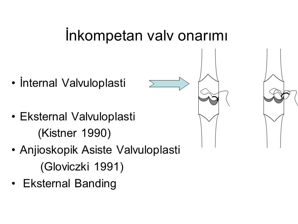 İnkompetan valv onarımı •İnternal Valvuloplasti •Eksternal Valvuloplasti (Kistner 1990) •Anjioskopik Asiste Valvuloplasti (Gloviczki 1991) • Eksternal
