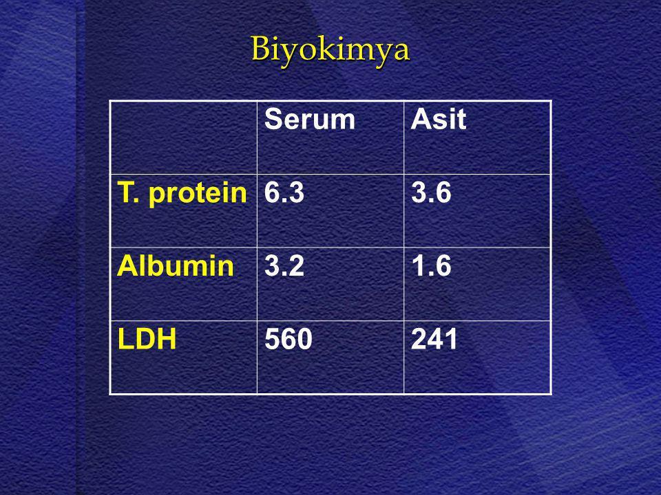 Biyokimya SerumAsit T. protein6.33.6 Albumin3.21.6 LDH560241