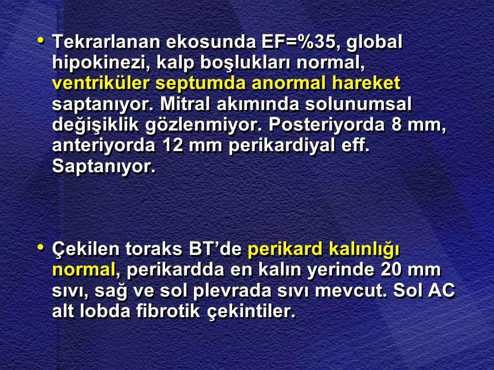 • • Tekrarlanan ekosunda EF=%35, global hipokinezi, kalp boşlukları normal, ventriküler septumda anormal hareket saptanıyor. Mitral akımında solunumsa