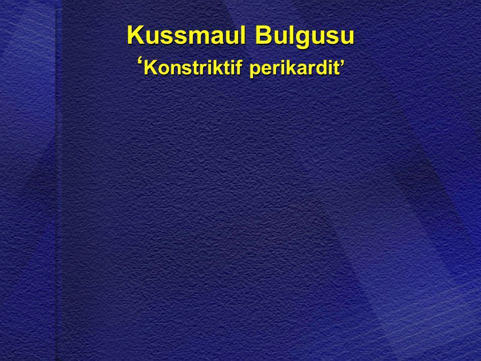 Kussmaul Bulgusu ' Konstriktif perikardit'