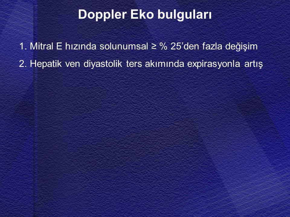 Doppler Eko bulguları 1.Mitral E hızında solunumsal ≥ % 25'den fazla değişim 2.Hepatik ven diyastolik ters akımında expirasyonla artış