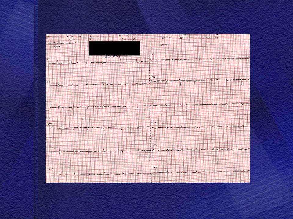 • • Hastanın fizik muayenesinde batında serbest asit saptanıyor.