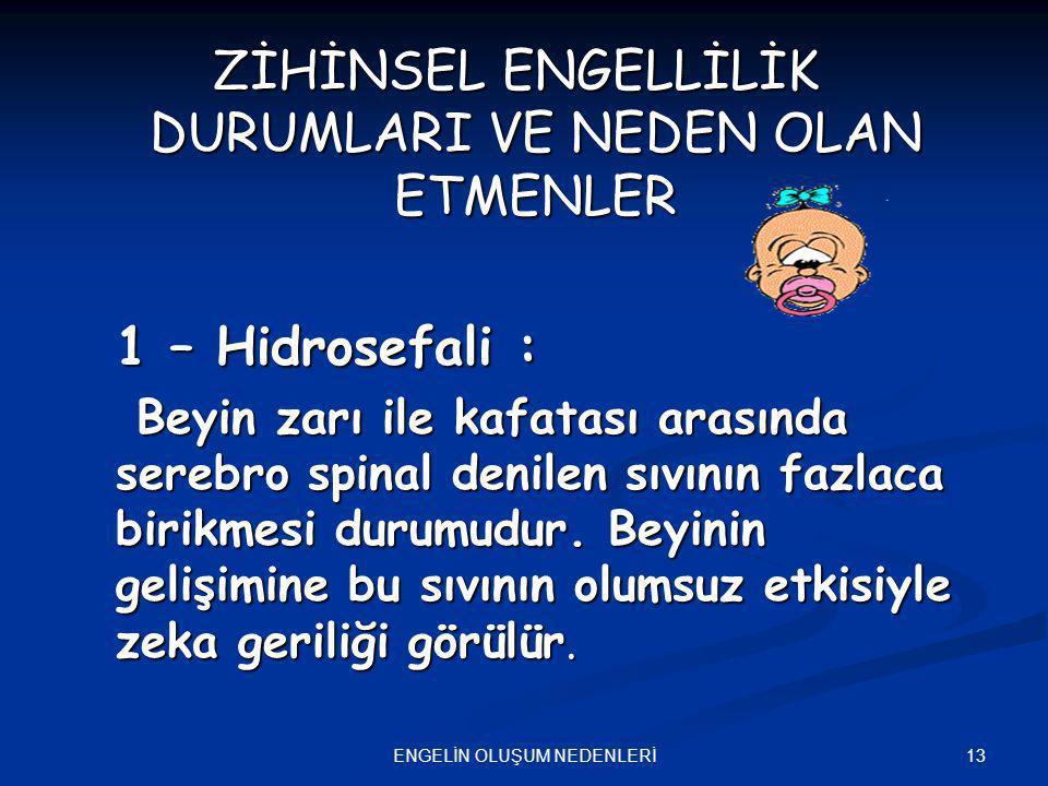 13ENGELİN OLUŞUM NEDENLERİ ZİHİNSEL ENGELLİLİK DURUMLARI VE NEDEN OLAN ETMENLER 1 – Hidrosefali : Beyin zarı ile kafatası arasında serebro spinal deni