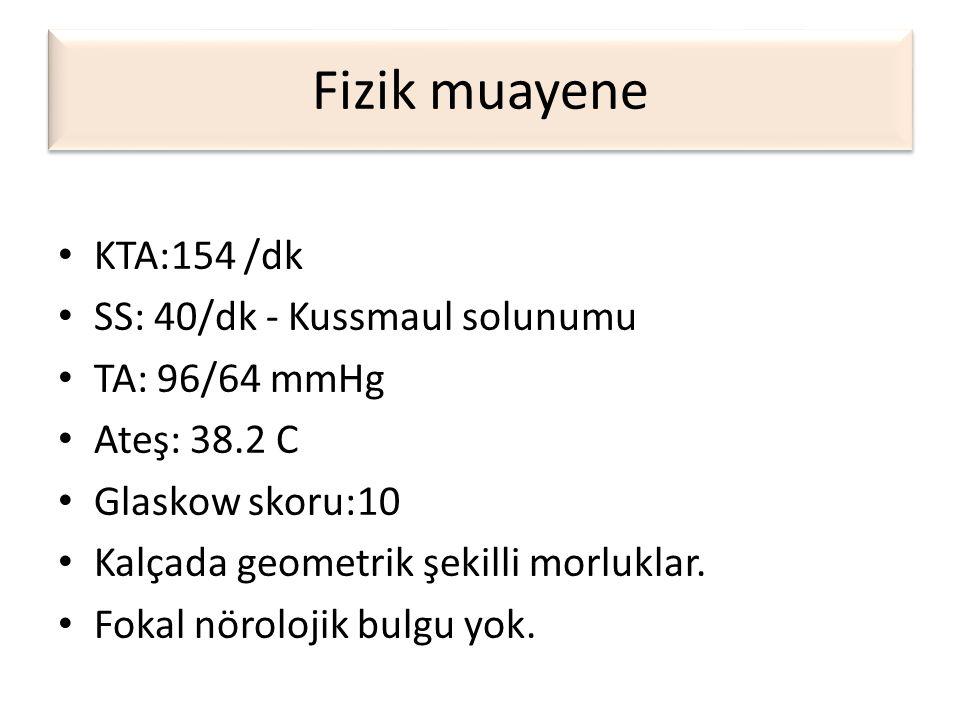 İzlem • 10 cc/kg SF bir saatte • Tam kan, biyokimya, tam idrar tetkiki, kan gazı • İdrar keton : 3 (+) • Kan gazı: pH : 6,95 BE: -26, Bikarbonat: 4, PaCO2: 15, PaO2: 150, Sat: 98 • Kan şekeri: 825mg/dl, Na: 131 mEq/L, K:3,8 mEq/L