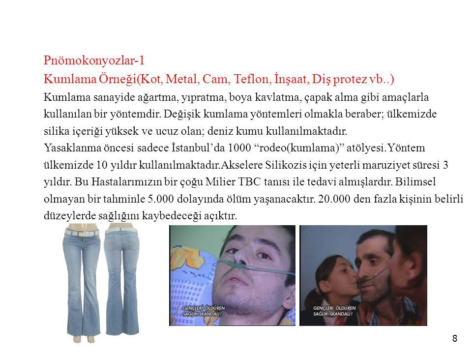 8 Pnömokonyozlar-1 Kumlama Örneği(Kot, Metal, Cam, Teflon, İnşaat, Diş protez vb..) Kumlama sanayide ağartma, yıpratma, boya kavlatma, çapak alma gibi