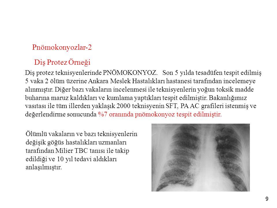 9 Diş protez teknisyenlerinde PNÖMOKONYOZ. Son 5 yılda tesadüfen tespit edilmiş 5 vaka 2 ölüm üzerine Ankara Meslek Hastalıkları hastanesi tarafından