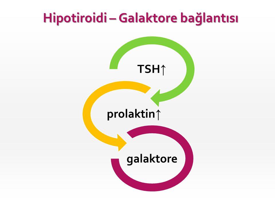 TSH ↑ prolaktin ↑ galaktore Hipotiroidi – Galaktore bağlantısı