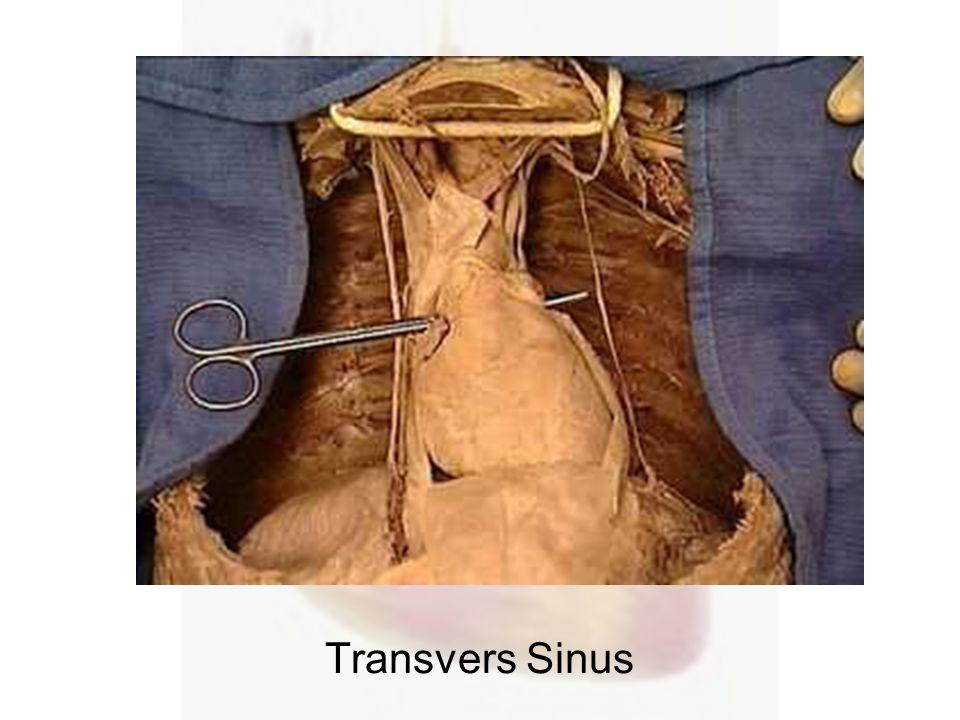 Transvers Sinus