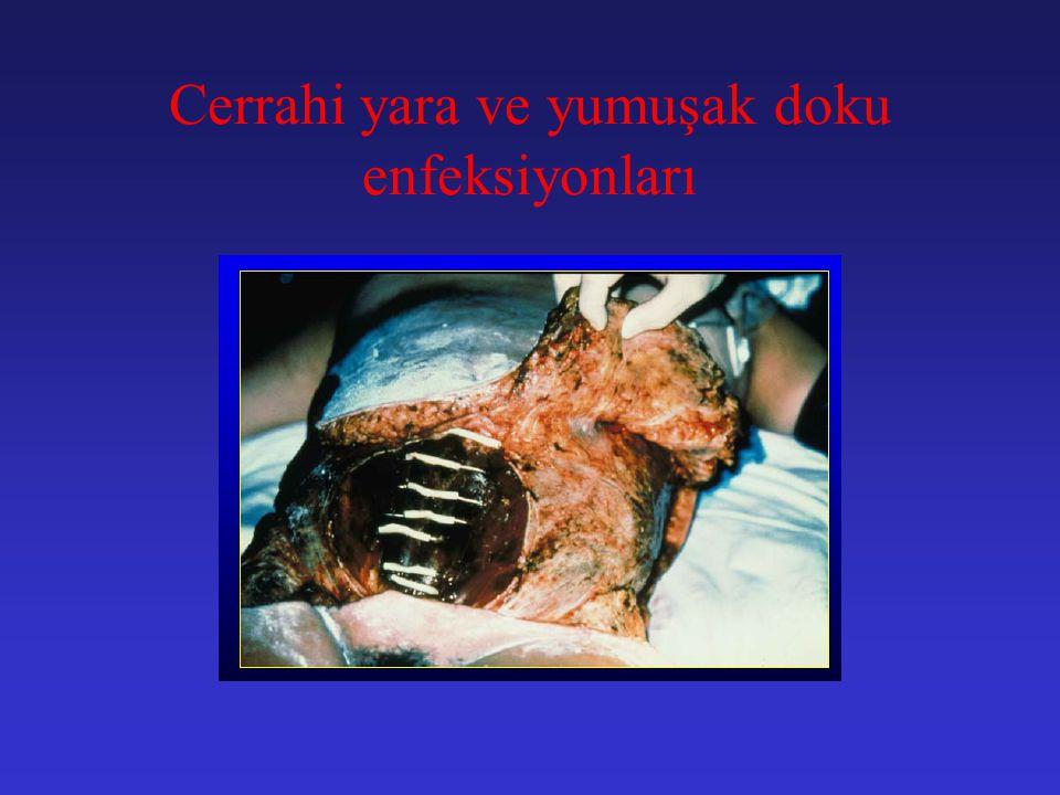 Intra-abdominal enfeksiyonun tedavisi C.Intra-abdominal apselerin cerrahi tedavisi: 1.Perkutan drenajda başarızılık 2.Güvenli perkutan dreanajın sağla