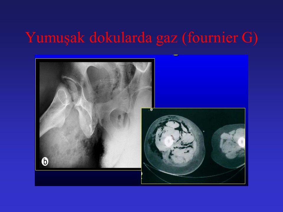 Fournier gangreni Massif Skrotal ödem ve yama tarzında deri nekrozu Kalçalara yayılan gangren
