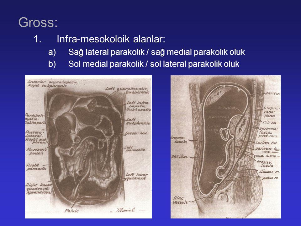 Gross: 1.Infra-mesokoloik alanlar: a)Sağ lateral parakolik / sağ medial parakolik oluk b)Sol medial parakolik / sol lateral parakolik oluk