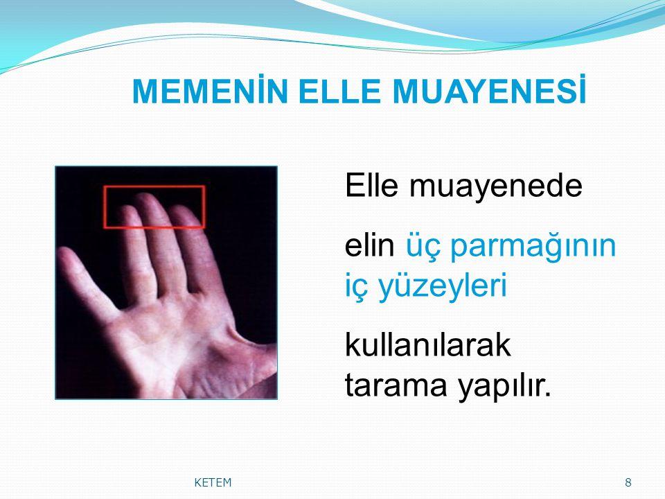 MEMENİN ELLE MUAYENESİ KETEM8 Elle muayenede elin üç parmağının iç yüzeyleri kullanılarak tarama yapılır.