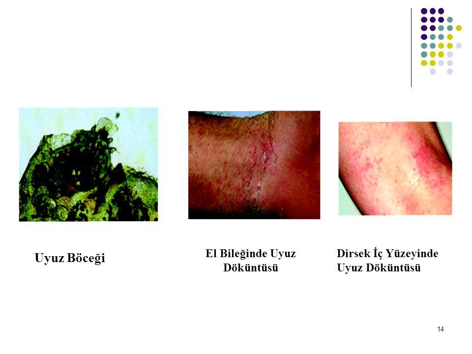 MANTARLAR Vücudun değişik bölgelerindeki mantar görüntüleri 15