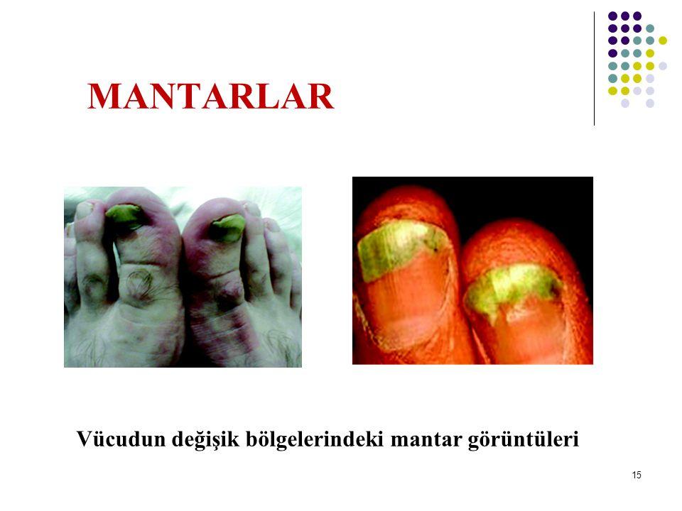 MANTARLAR Vücudun değişik bölgelerindeki mantar görüntüleri 16