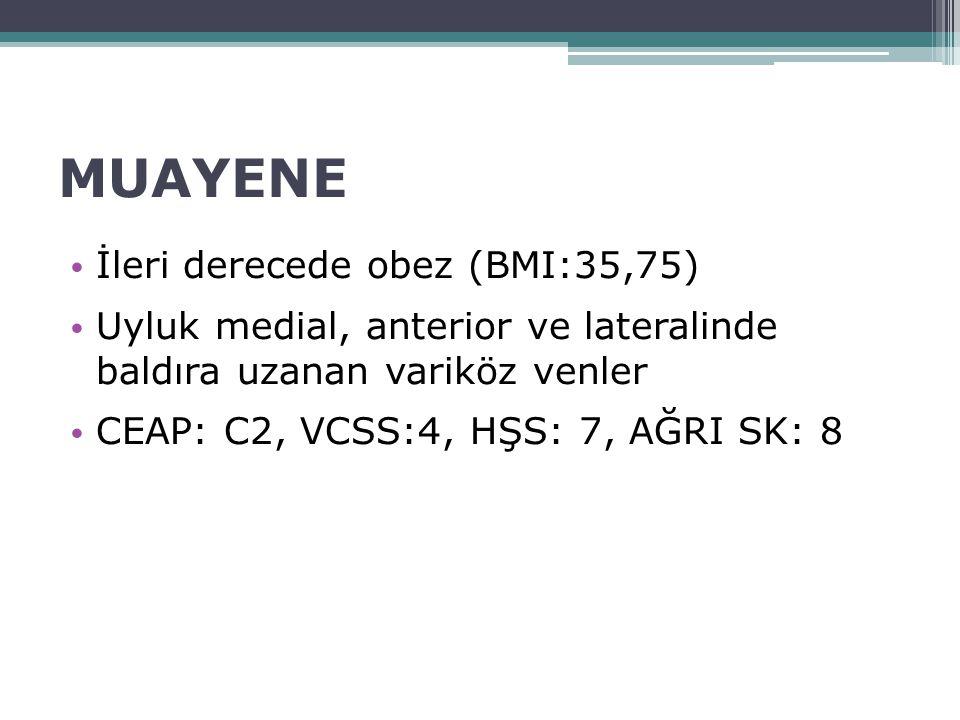 MUAYENE İleri derecede obez (BMI:35,75) Uyluk medial, anterior ve lateralinde baldıra uzanan variköz venler CEAP: C2, VCSS:4, HŞS: 7, AĞRI SK: 8