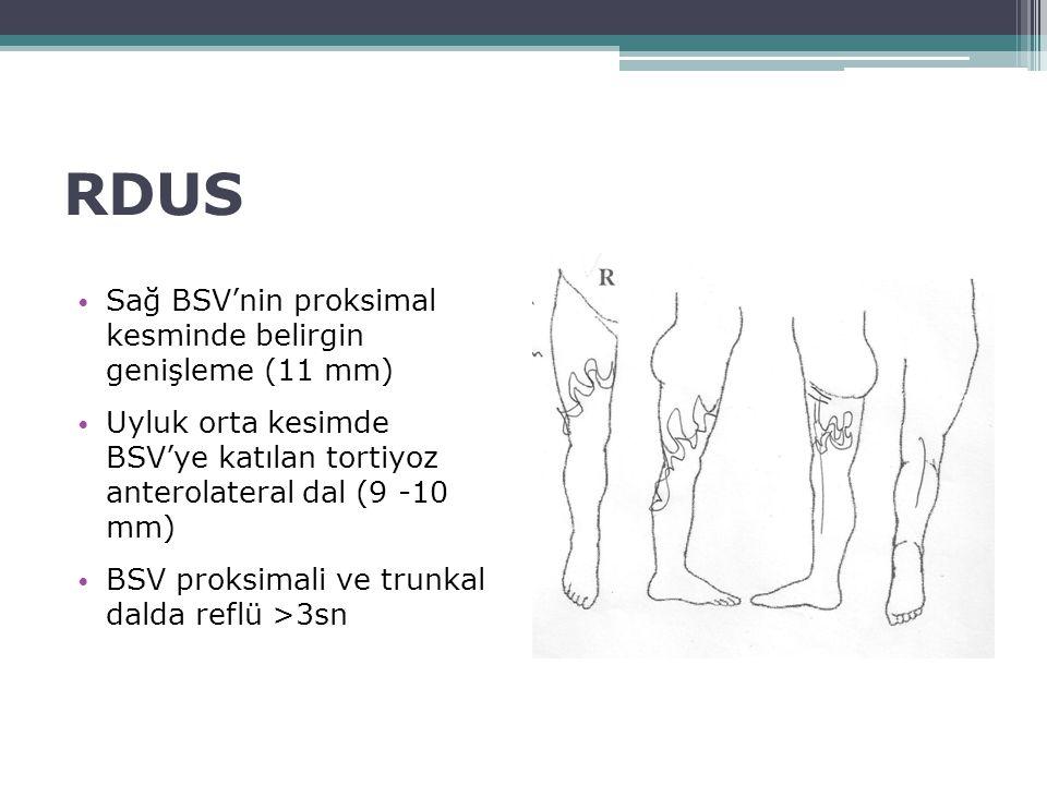 RDUS Sağ BSV'nin proksimal kesminde belirgin genişleme (11 mm) Uyluk orta kesimde BSV'ye katılan tortiyoz anterolateral dal (9 -10 mm) BSV proksimali