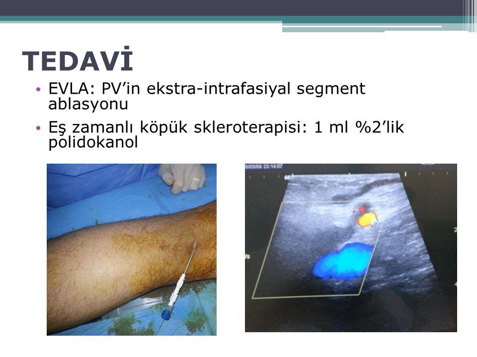TEDAVİ EVLA: PV'in ekstra-intrafasiyal segment ablasyonu Eş zamanlı köpük skleroterapisi: 1 ml %2'lik polidokanol