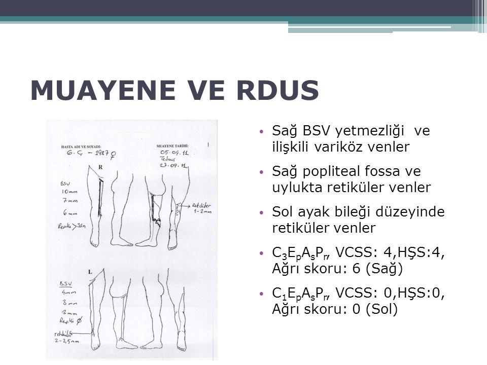 MUAYENE VE RDUS Sağ BSV yetmezliği ve ilişkili variköz venler Sağ popliteal fossa ve uylukta retiküler venler Sol ayak bileği düzeyinde retiküler venl