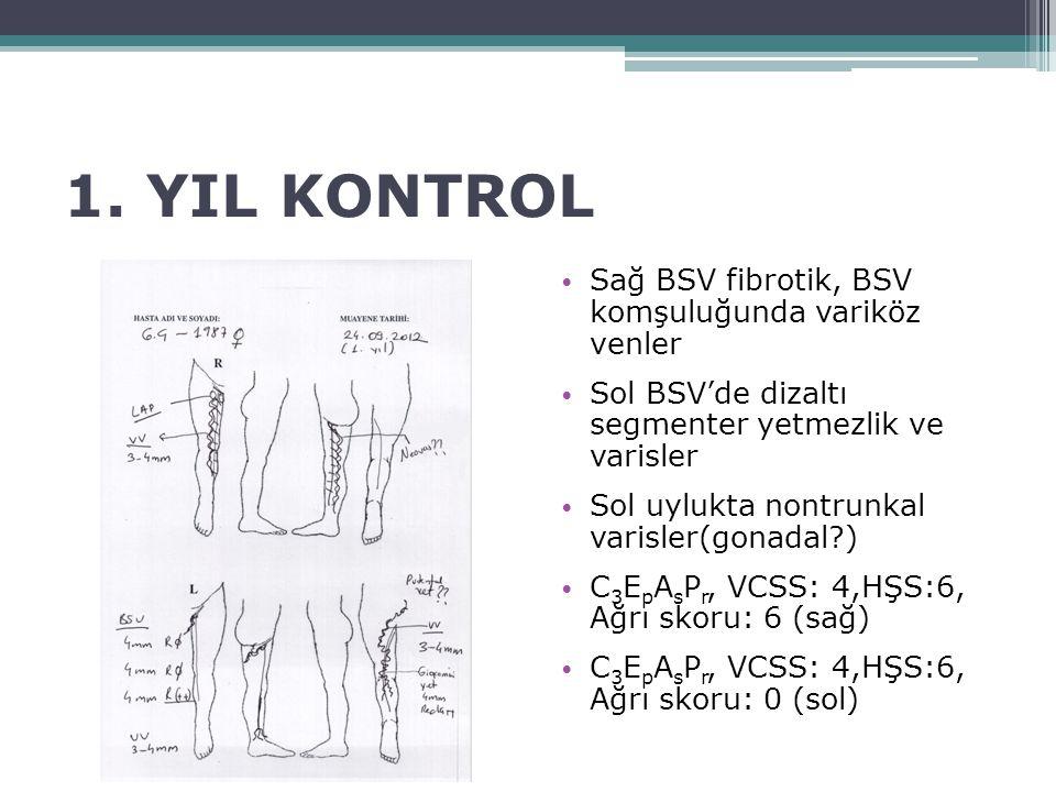1. YIL KONTROL Sağ BSV fibrotik, BSV komşuluğunda variköz venler Sol BSV'de dizaltı segmenter yetmezlik ve varisler Sol uylukta nontrunkal varisler(go