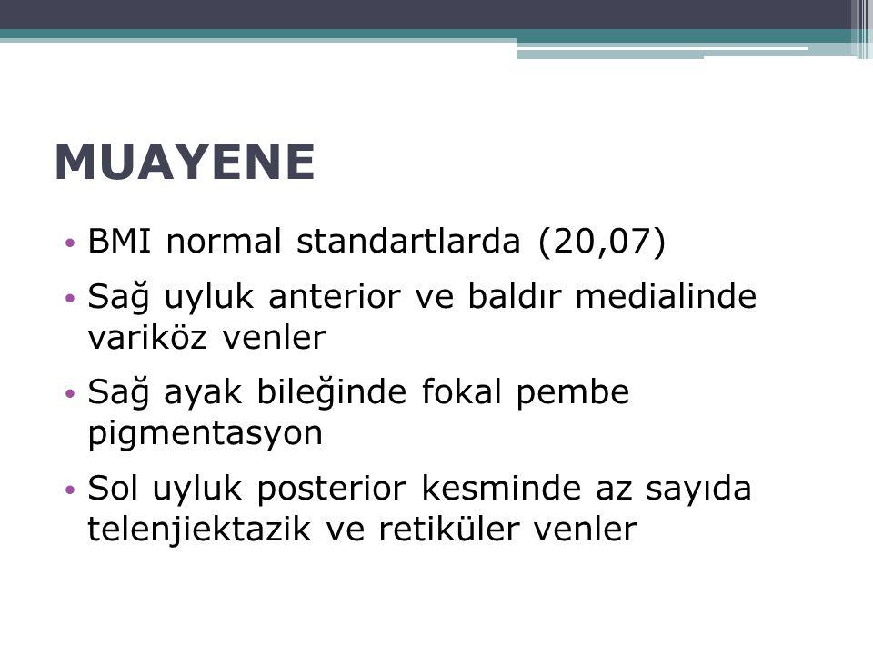 MUAYENE BMI normal standartlarda (20,07) Sağ uyluk anterior ve baldır medialinde variköz venler Sağ ayak bileğinde fokal pembe pigmentasyon Sol uyluk