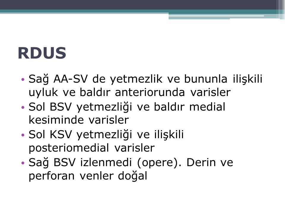 RDUS Sağ AA-SV de yetmezlik ve bununla ilişkili uyluk ve baldır anteriorunda varisler Sol BSV yetmezliği ve baldır medial kesiminde varisler Sol KSV y