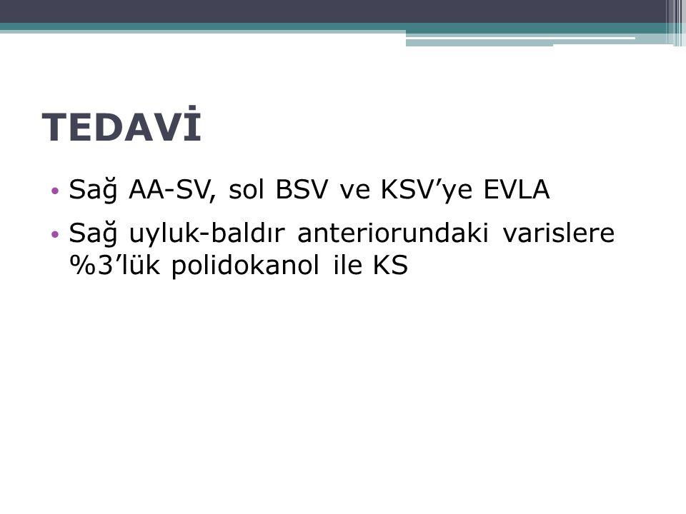 TEDAVİ Sağ AA-SV, sol BSV ve KSV'ye EVLA Sağ uyluk-baldır anteriorundaki varislere %3'lük polidokanol ile KS