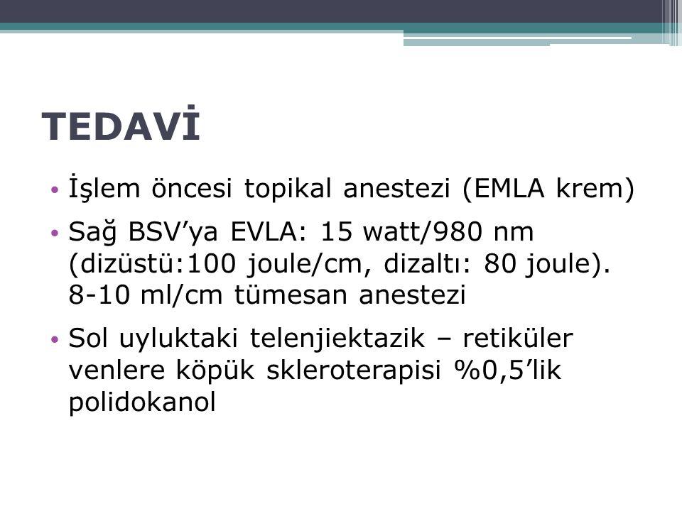 TEDAVİ İşlem öncesi topikal anestezi (EMLA krem) Sağ BSV'ya EVLA: 15 watt/980 nm (dizüstü:100 joule/cm, dizaltı: 80 joule). 8-10 ml/cm tümesan anestez