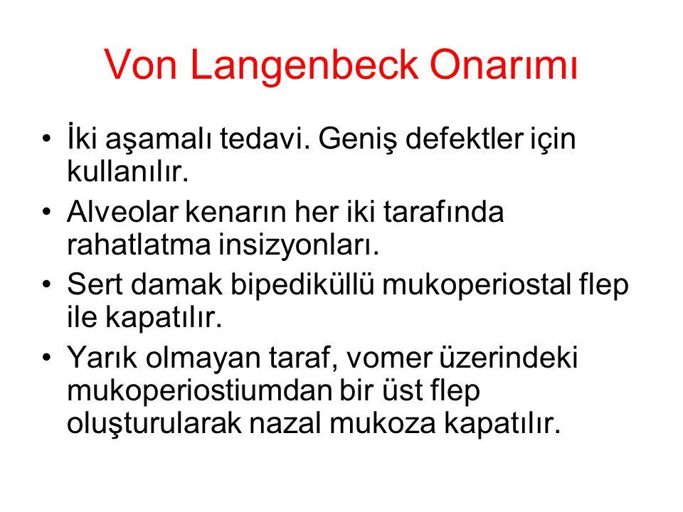 Von Langenbeck Onarımı İki aşamalı tedavi. Geniş defektler için kullanılır. Alveolar kenarın her iki tarafında rahatlatma insizyonları. Sert damak bip