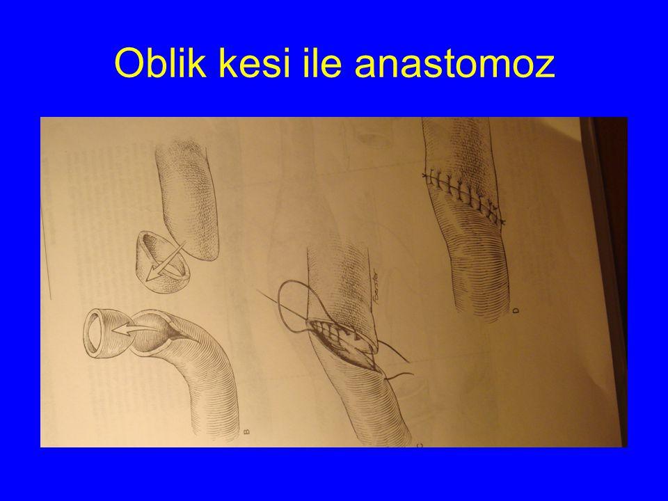 Oblik kesi ile anastomoz