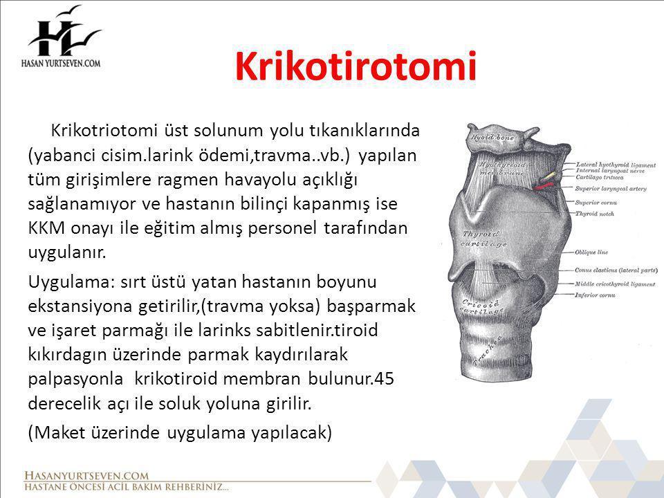 Krikotirotomi Krikotriotomi üst solunum yolu tıkanıklarında (yabanci cisim.larink ödemi,travma..vb.) yapılan tüm girişimlere ragmen havayolu açıklığı