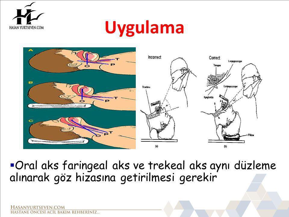 Uygulama  Oral aks faringeal aks ve trekeal aks aynı düzleme alınarak göz hizasına getirilmesi gerekir