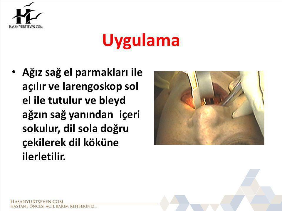 Uygulama Ağız sağ el parmakları ile açılır ve larengoskop sol el ile tutulur ve bleyd ağzın sağ yanından içeri sokulur, dil sola doğru çekilerek dil k