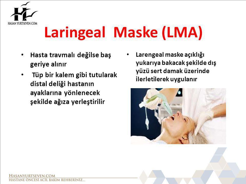 Laringeal Maske (LMA) Hasta travmalı değilse baş geriye alınır Tüp bir kalem gibi tutularak distal deliği hastanın ayaklarına yönlenecek şekilde ağıza yerleştirilir Larengeal maske açıklığı yukarıya bakacak şekilde dış yüzü sert damak üzerinde ilerletilerek uygulanır