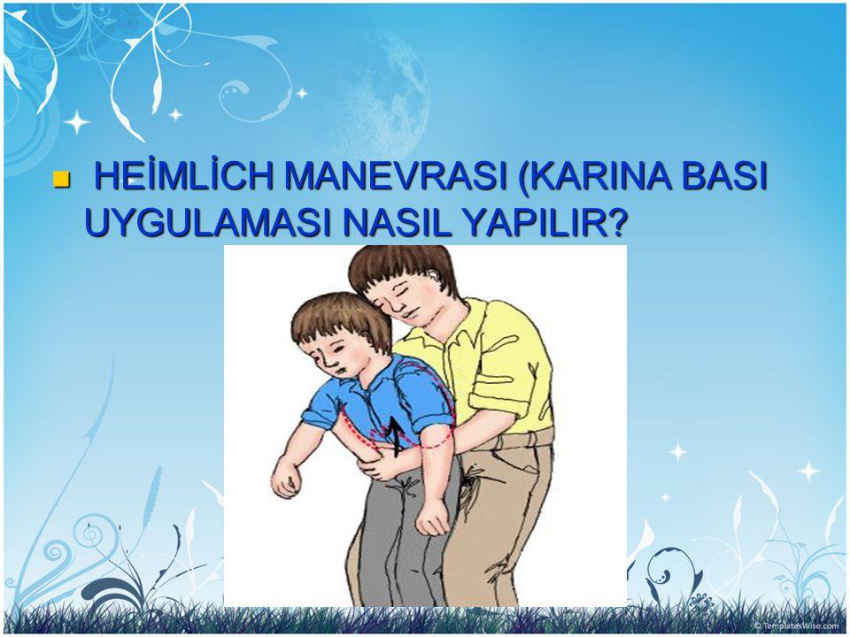 HEİMLİCH MANEVRASI (KARINA BASI UYGULAMASI NASIL YAPILIR.