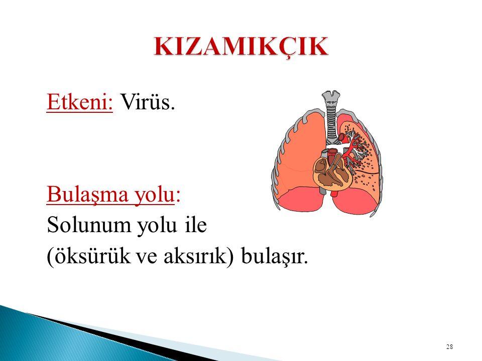 Etkeni: Virüs. Bulaşma yolu: Solunum yolu ile (öksürük ve aksırık) bulaşır. 28