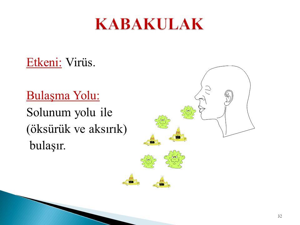 Etkeni: Virüs. Bulaşma Yolu: Solunum yolu ile (öksürük ve aksırık) bulaşır. 32