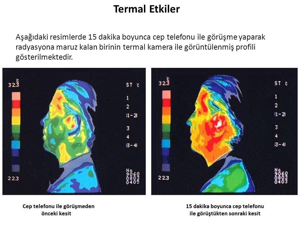 Termal Etkiler Aşağıdaki resimlerde 15 dakika boyunca cep telefonu ile görüşme yaparak radyasyona maruz kalan birinin termal kamera ile görüntülenmiş